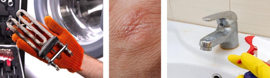 Das erste Bild zeigt Rostschäden am Heizstab einer Waschmaschine. Das zweite Bild zeigt Hautreizungen. Und das dritte Bild zeigt einen verkalkten Wasserhahn.